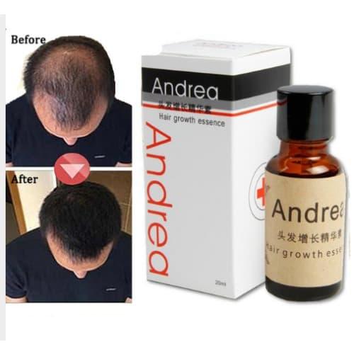 Andrea Hair Growth Treatment