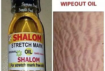 Stretch mark removal oil
